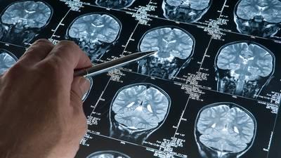 How does Alzheimer's disease kill you?